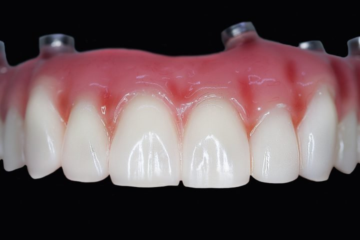 All on 4 upper implant