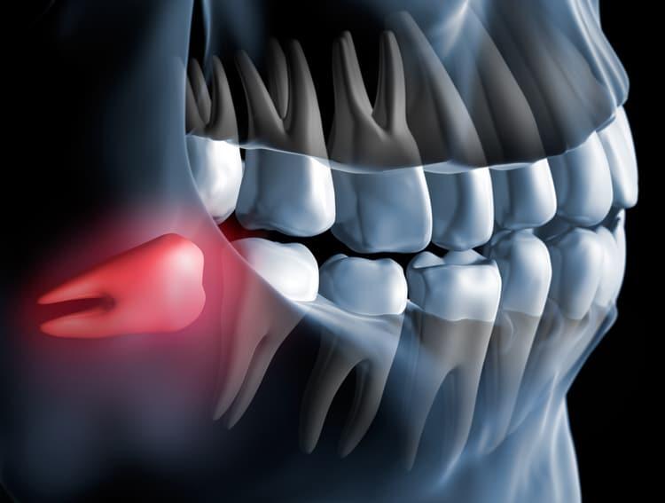 x-ray of wisdom teeth