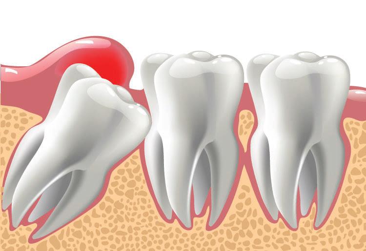 illustration of wisdom teeth coming through