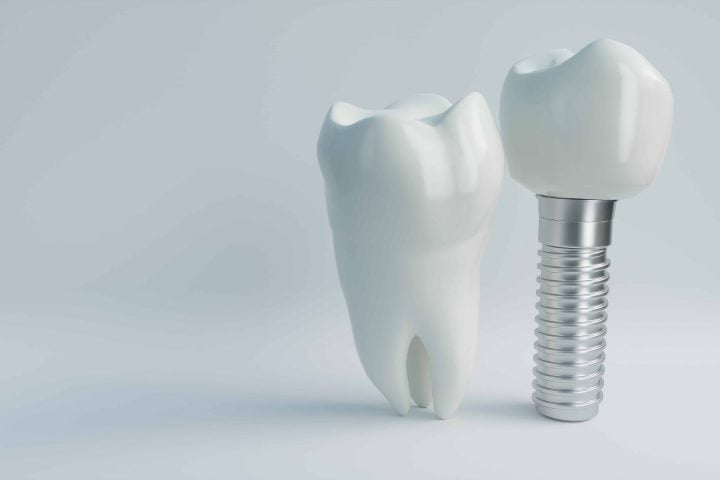 Human and Implant Tooth Models